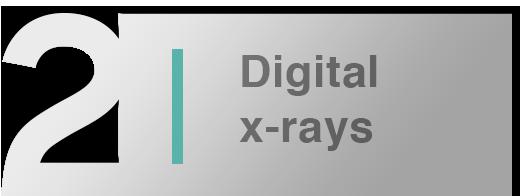 Hanford Dentist, Cosmetic Dentist in Hanford digital x-rays