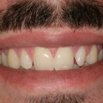 composite-veneers: cosmetic dentist in the Hanford,